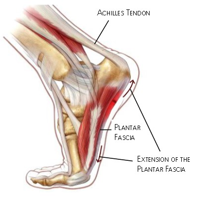 Plantar Fasciitis Foot Heel Pain Lateral View