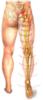 Sciatic Pain2