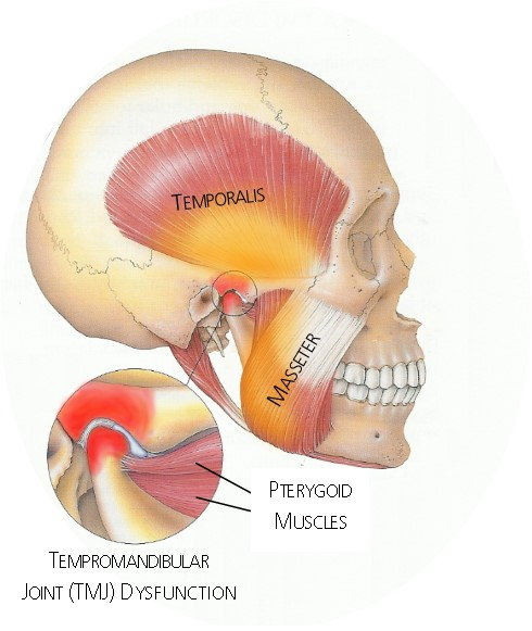 TMJ Jaw Pain Lateral View