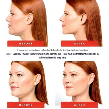 Before & After Kybella at Dermani Medspa in Sandy Springs, Atlanta, GA