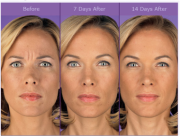 Before and After Botox at Dermani Medspa in Midtown, Atlanta, GA