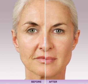 Before and After Juvederm at Dermani Medspa in Buford, GA