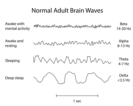 Brainwaves Example for NeuroField Neurotherapy, Inc.