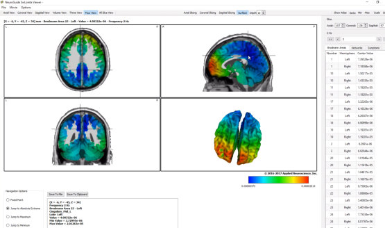 Quantitative Electroencephalogram (QEEG) Brain Mapping at NeuroField Neurotherapy, Inc.