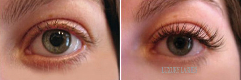 Before and After - Luxury Lashes